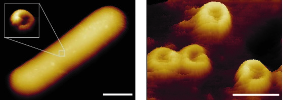 Hole-forming nanomachines – so-called membrane attack complexes – imaged on the back of a bacterium. The scale bars correspond to 800 (left) and 30 (right) nanometres. Source: EMBO Journal (2019)