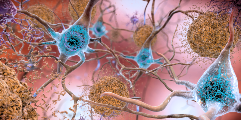 Key step forward in tackling neurodegenerative diseases